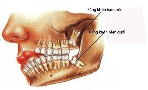 Răng khôn mọc khi nào? Những trường hợp răng khôn mọc 1