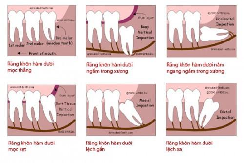 Răng khôn mọc khi nào? Những trường hợp răng khôn mọc 3