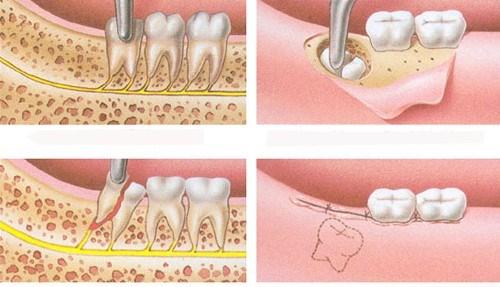 Răng khôn mọc khi nào? Những trường hợp răng khôn mọc 4